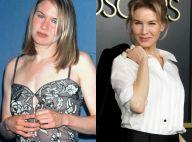 Renée Zellweger : Joufflue, amincie, tirée... Son évolution physique en images