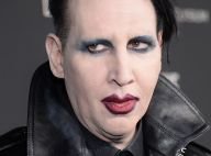 Marilyn Manson : Une actrice de Game of Thrones l'accuse de sévices corporels et dévoile ses cicatrices