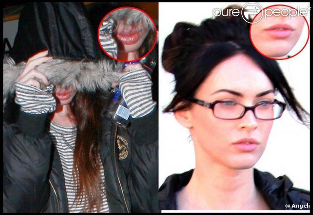 La très belle Megan Fox s'est fait refaire les lèvres, c'est pas beau...