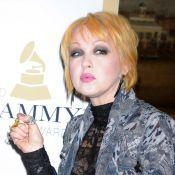 Cyndi Lauper, le visage irrité et méconnaissable ? Elle va bien !