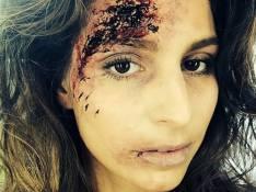 Laury Thilleman, défigurée : ''Je ne me sens pas très bien...''