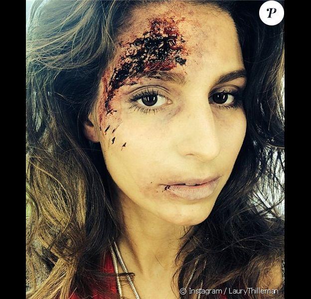 Laury Thilleman, défigurée pour les besoins du tournage d'Alice Nevers : Le juge est une femme sur TF1. Photo postée sur Instagram le lundi 31 mars 2014.