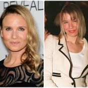Renée Zellweger, Teri Hatcher, Megan Fox... Elles ont succombé à la chirurgie