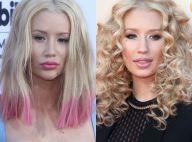 Iggy Azalea : La bombe a subi une nouvelle opération de chirurgie esthétique