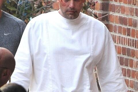 Ben Affleck, le visage ensanglanté en plein tournage...