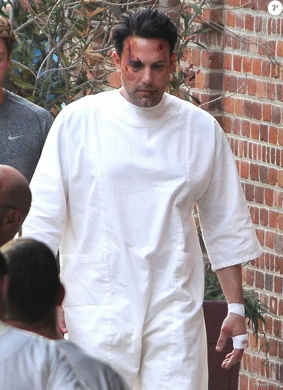 Ben Affleck, le visage en sang, sur le tournage de 'Live By Night' à Los Angeles, le 8 décembre 2015