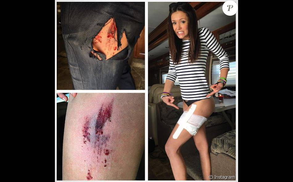 Nina Dobrev affiche ses blessures sur Instagram. Avril 2016