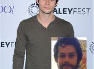 Dylan O'Brien: Méconnaissable, le héros gravement blessé de Teen Wolf réapparaît