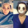 La photo choc de Nadège après son opération du nez. Décembre 2016.