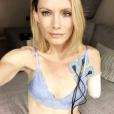 Olivia Jackson affiche de la plus belle des manières ses blessures