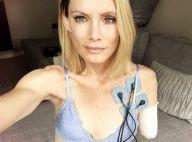 Olivia Jackson : La cascadeuse de Resident Evil, meurtrie, montre ses cicatrices
