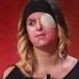 Gessica Notaro, attaquée à l'acide par son ex-compagnon en janvier dernier, dévoile son visage quelques mois après son agression dans une émission de télé italienne - Image extraite d'une vidéo publiée sur Youtube le 21 avril 2017
