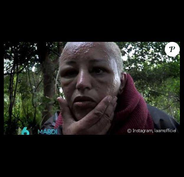 """Lââm défigurée par les moustiques dans """"The Island Célébrités"""" sur M6, à partir du 15 mai 2018 à 21h."""