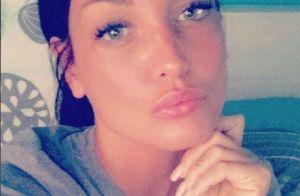 Aurélie Dotremont et la chirurgie : Ses nouvelles lèvres