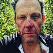 Lance Armstrong hospitalisé : Lourde chute à vélo, il révèle les dégâts