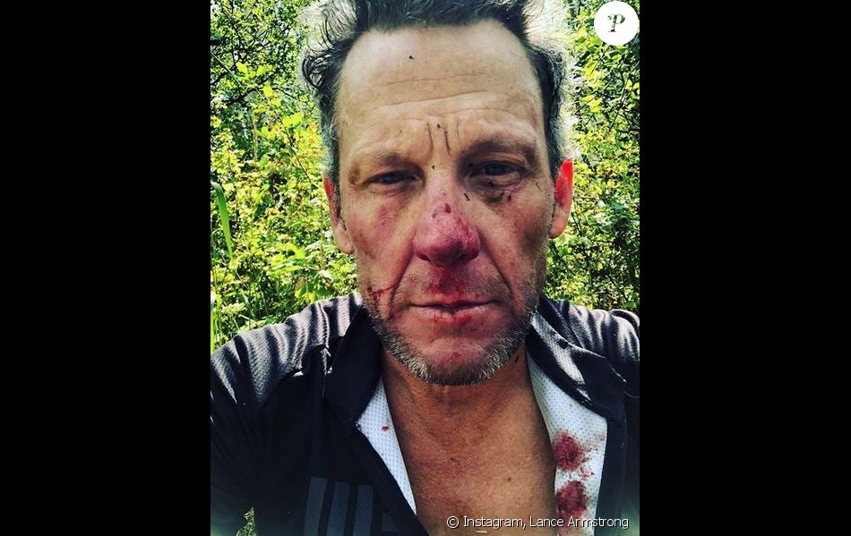 Lance Armstrong hospitalisé après un accident de vélo
