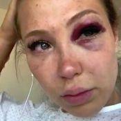 Andréane (Les Vacances des Anges 3) : Défigurée après un accident de buggy
