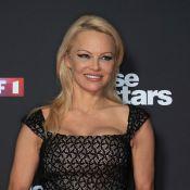 """Pamela Anderson en """"galère"""" : La star victime d'une déchirure musculaire"""