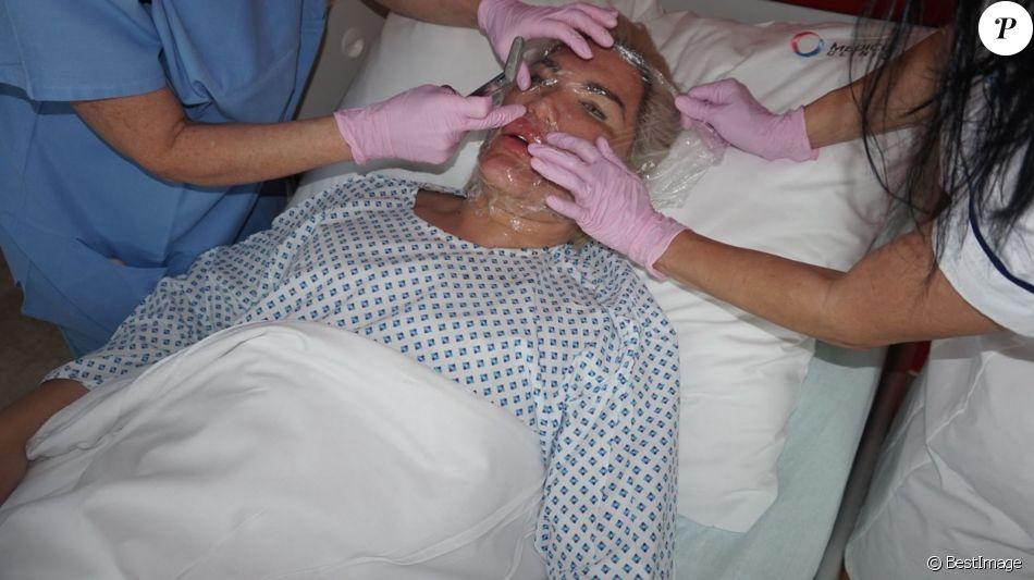 """Rodrigo Alves alias """"Human Ken Doll"""" lors d'une opération chirurgicale du visage au centre Medico Beauty & IVF de Prague, République tchèque, le 3 mai 2018."""