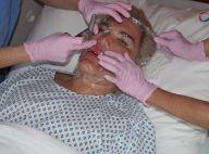 Rodrigo Alves : 70e opération de chirurgie esthétique, le Ken humain raconte