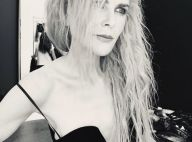 """Nicole Kidman """"squelettique"""" : ses fans inquiets"""