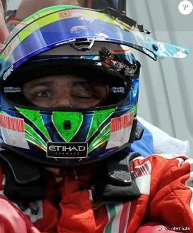 Felipe massa sorti de sa voiture juste apr s son accident du 25 juillet - Coup du lapin accident de voiture ...