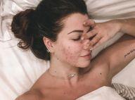 """EnjoyPhoenix, sans maquillage, assume son acné : """"Ça craint"""""""
