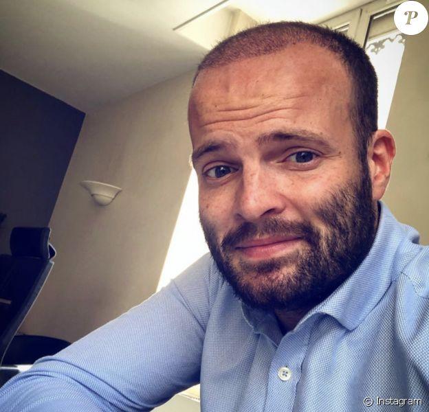 "Alban, ex-candidat de ""Koh-Lanta"", après sa greffe de cheveux."