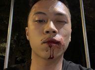 Kinstaar : Le jeune streameur agressé par un groupe, photos et récit choc