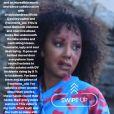 """Mel B commente la sortie du clip de la chanson """"Love Should Not Hurt"""", dans lequel elle incarne une victime de violences conjugales."""