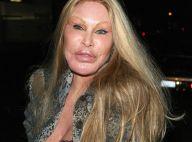 Jocelyn Wildenstein : Incroyable, la femme chat a retrouvé un visage normal !