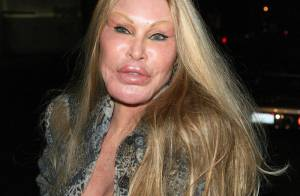 Jocelyn Wildenstein : Incroyable, la femme chat a retrouvé un visage normal !